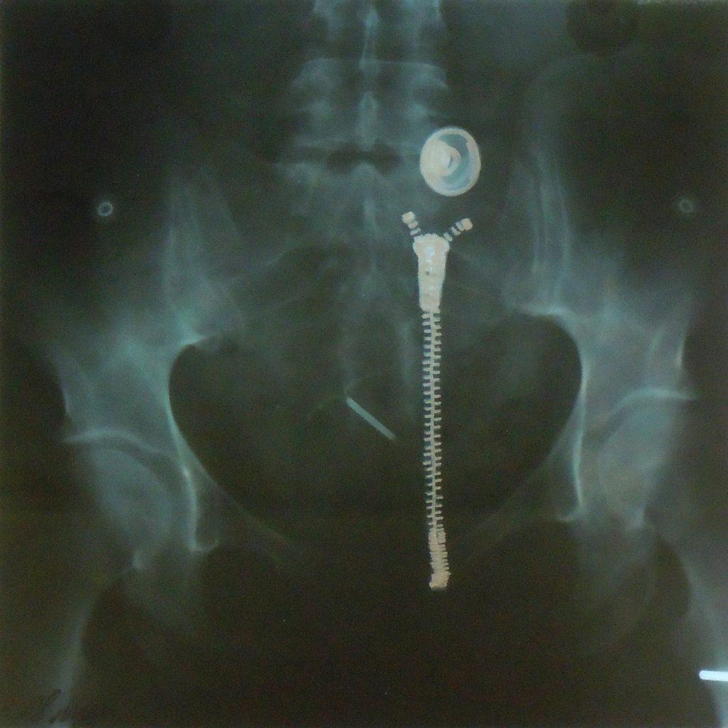 Für Markus, 30 x 30 cm, Acryl auf Röntgenbild